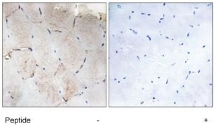 Phospho-PKC delta (Ser645) Antibody (PA1-28462)