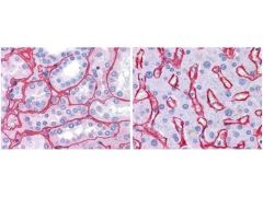 Collagen IV Antibody (PA1-28534)