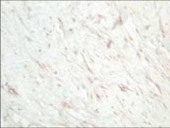 SFRP1 Antibody (PA1-29540)