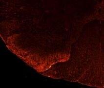 TRPV1 Antibody (PA1-29770)