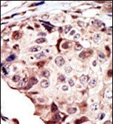 RYK Antibody (PA1-30319)