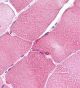 ARC Antibody (PA1-30681)