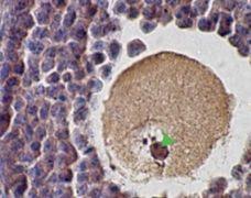 SCP1 Antibody (PA1-31223)