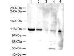 ATAD5 Antibody (PA1-31987)