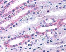HTR2B Antibody (PA1-32494)