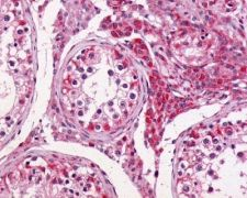 GPR64 Antibody (PA1-32497)