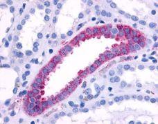 alpha-1b Adrenergic Receptor Antibody (PA1-32558)