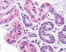 CXCR1 Antibody (PA1-32560)