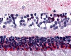 MTNR1B Antibody (PA1-32564)