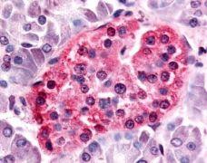 SGK3 Antibody (PA1-32643)