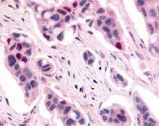 CDK12 Antibody (PA1-32644)