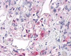 OR2H2 Antibody (PA1-32776)