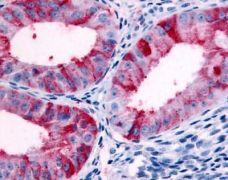 GPR89B Antibody (PA1-32840)