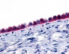 GPR133 Antibody (PA1-32849)