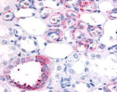 OR16/OR23 Antibody (PA1-32856)