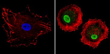 LXR alpha Antibody (PA1-330)