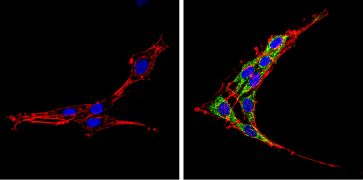 SREBP2 Antibody (PA1-338)