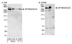 Spectrin beta-3 Antibody (PA1-46007)