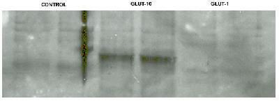 GLUT10 Antibody (PA1-46137)