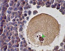 SCP1 Antibody (PA1-46254)