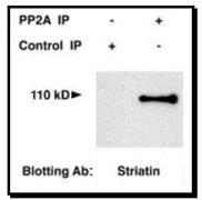 STRN Antibody (PA1-46460)