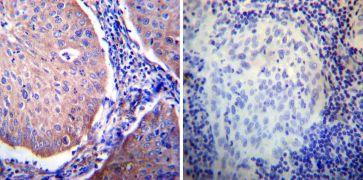 Glucocorticoid Receptor alpha Antibody (PA1-516)