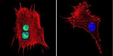 ATRIP Antibody (PA1-519)