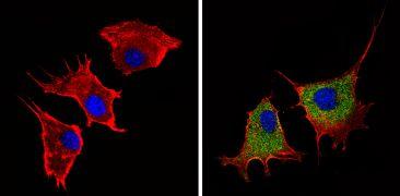 Plasminogen Antibody (PA1-600)