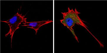 Endostatin Antibody (PA1-601)