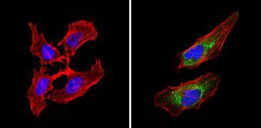BACE2 Antibody (PA1-754)