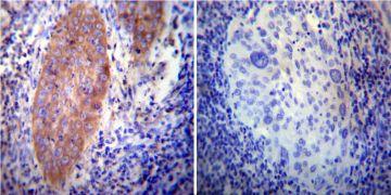 VAMP4 Antibody (PA1-768)