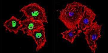 HDAC2 Antibody (PA1-861)