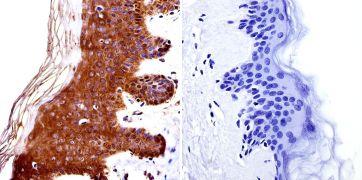 HDAC4 Antibody (PA1-863)