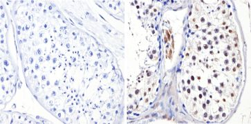 DNMT3B Antibody (PA1-884)