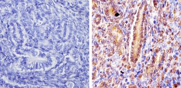 DMAP1 Antibody (PA1-886)