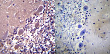 Parvalbumin Antibody (PA1-933)