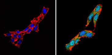 Calcium Sensing Receptor Antibody (PA1-934A)
