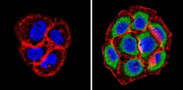 PSMB6 Antibody (PA1-978)