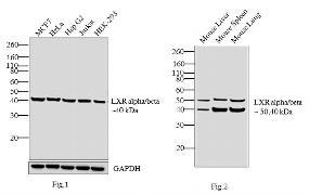 LXR alpha/beta Antibody (PA1-331B)