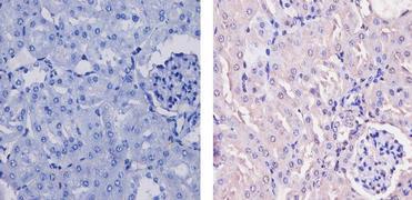 CaMKI Antibody (PA1-543)