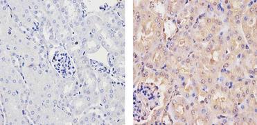 Ubiquilin 1 Antibody (PA1-759)