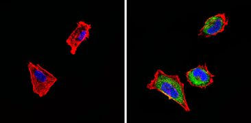 SSTR4 Antibody (PA3-111)