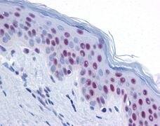 MRE11 Antibody (PA3-16527)