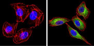 Transferrin Antibody (PA3-913)