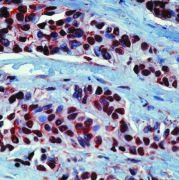 HSP90 alpha Antibody (PA5-16341)