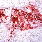 Cytokeratin 14 Antibody (PA5-16722)