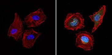 Survivin Antibody (PA5-16859)