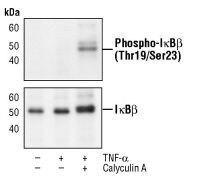 Phospho-IkB beta (Thr19, Ser23) Antibody (PA5-17517)