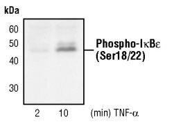 Phospho-IkB epsilon (Ser18, Ser22) Antibody (PA5-17532)