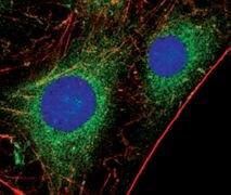 PKC alpha Antibody (PA5-17551)
